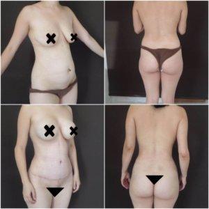 Mamoplastia-de-aumento-Dr.-Gustavo-Jimenez-Muñoz-Ledo-300x300