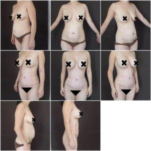 liposuccion-y-aumento-mamario-3-Dr.-Gustavo-Jimenez-Muñoz-Ledo-300x300
