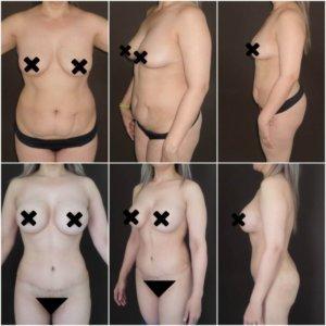 liposuccion-y-aumento-mamario-Dr.-Gustavo-Jimenez-Muñoz-Ledo-300x300