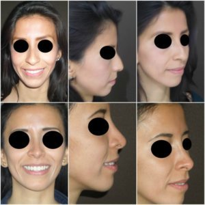 rinoplastia-2-Dr.-Gustavo-Jimenez-Muñoz-Ledo-300x300
