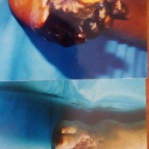 Dr. Hugo Sánchez y Torres - tratamiento para varices en puebla - costo de operacion de varices en puebla - pie diabetico en puebla - tratamiento de pie diabetico en puebla