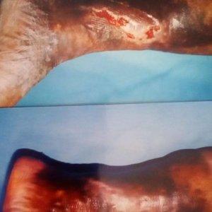 Dr. Hugo Sánchez y Torres - angiologo en puebla - tratamiento para varices en puebla - tratamiento de pie diabetico en puebla